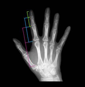 Ossa della mano nel rapporto di scala phi